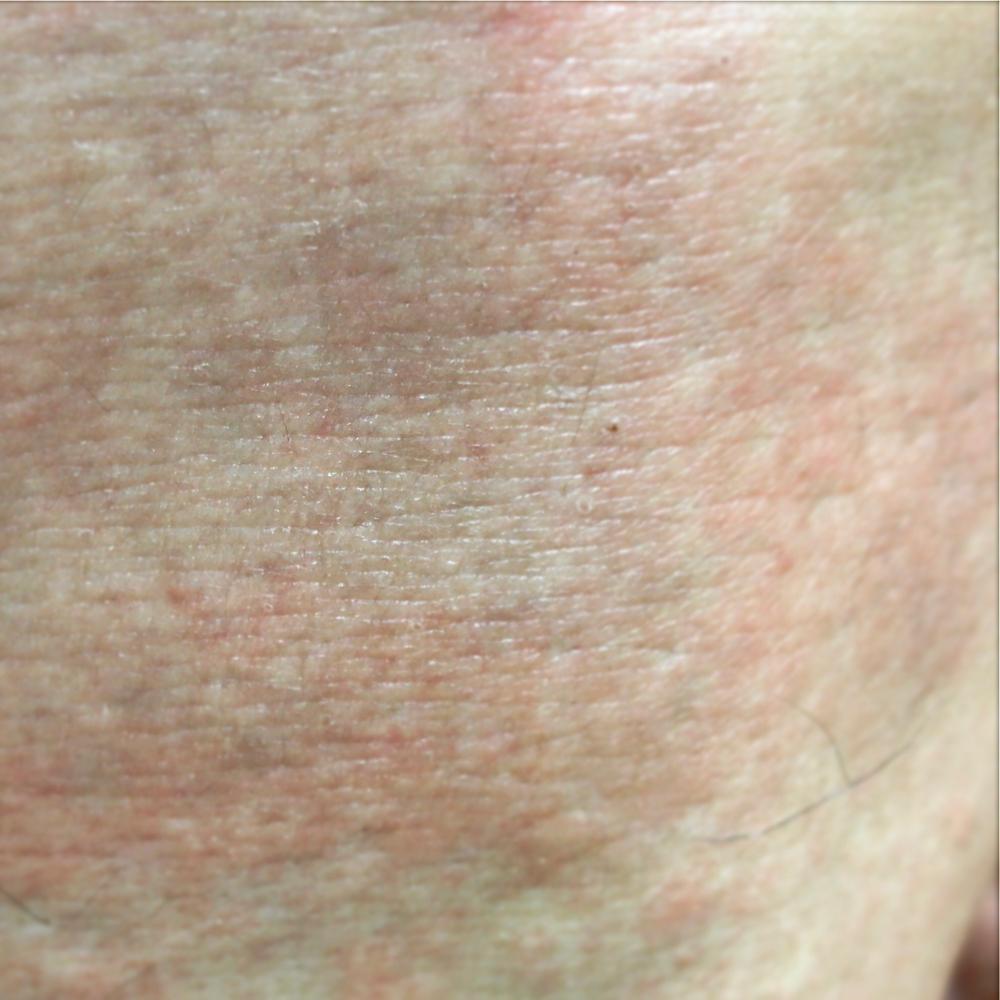 蕁麻疹 全身 顔