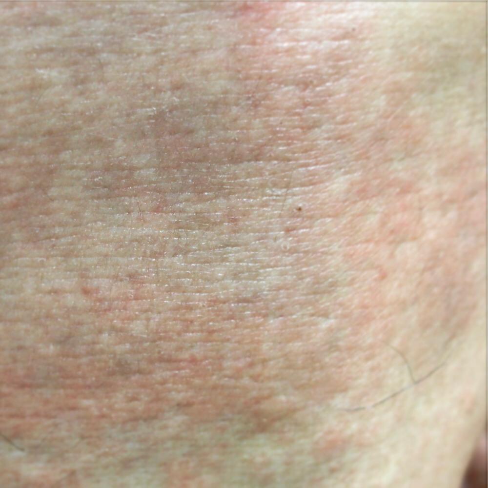 蕁 麻疹 画像 ストレス